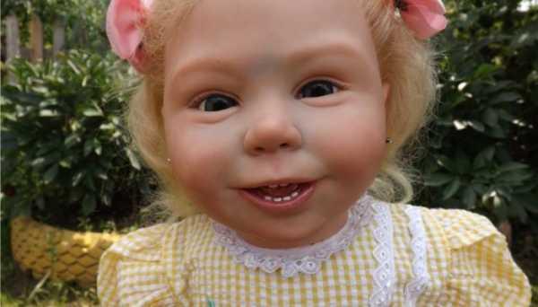 Синий носогубный треугольник у ребенка: причины, что делать