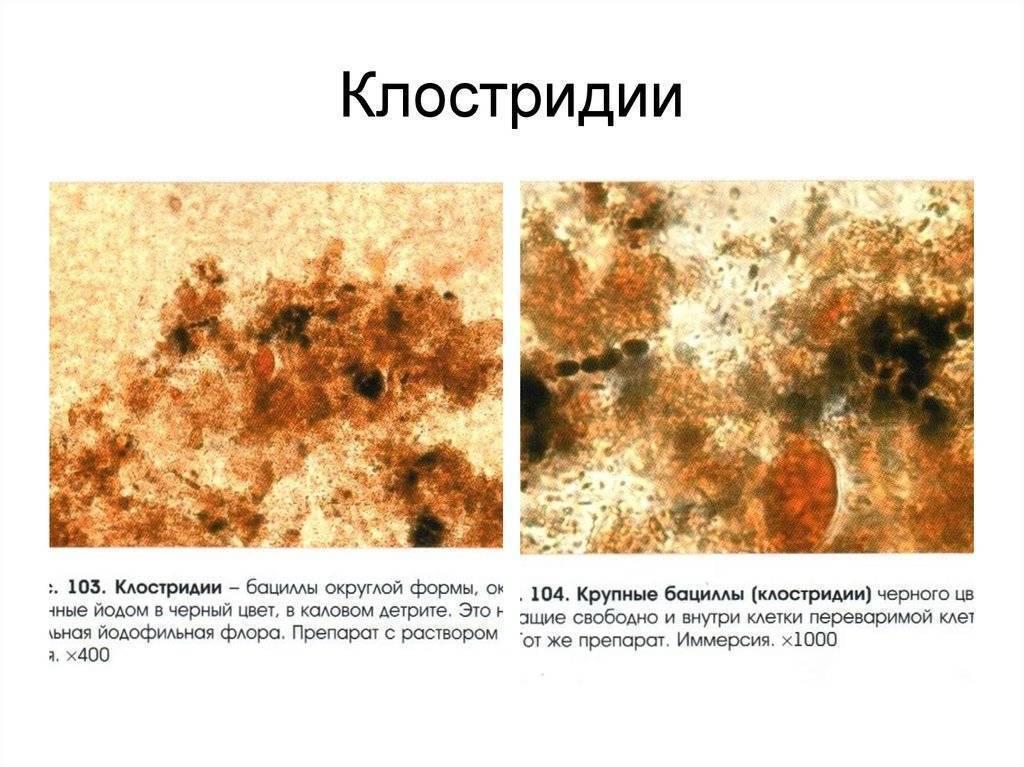 О чем говорит йодофильная флора в кале