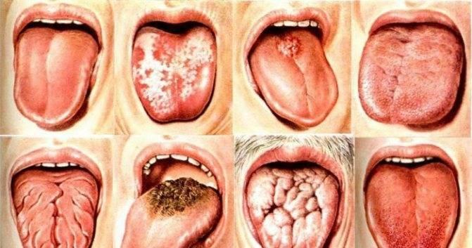 Здоровое горло – как должно выглядеть, фото