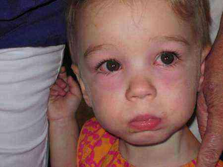 Красные глаза у детей: причины, почему покраснел один, у ребёнка краснеют белки, от чего могут быть покраснения по комаровскому