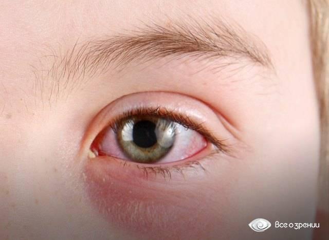 Выделения из глаза. коньюктевит или...? - белые выделения из глаз - запись пользователя наталья (tulpan77) в сообществе здоровье новорожденных в категории болезни глаз - babyblog.ru
