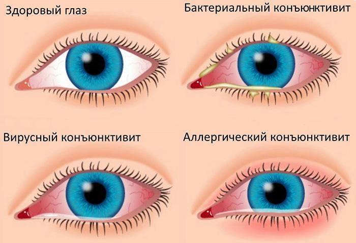 Можно ли протирать глаза заваркой новорожденному. чем протирать новорожденным глазки, и как правильно это делать
