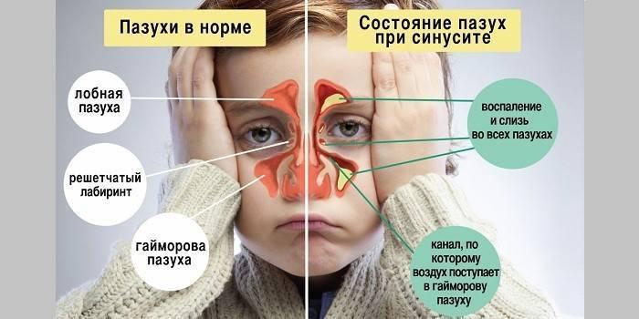 Заложенность носа у грудничка
