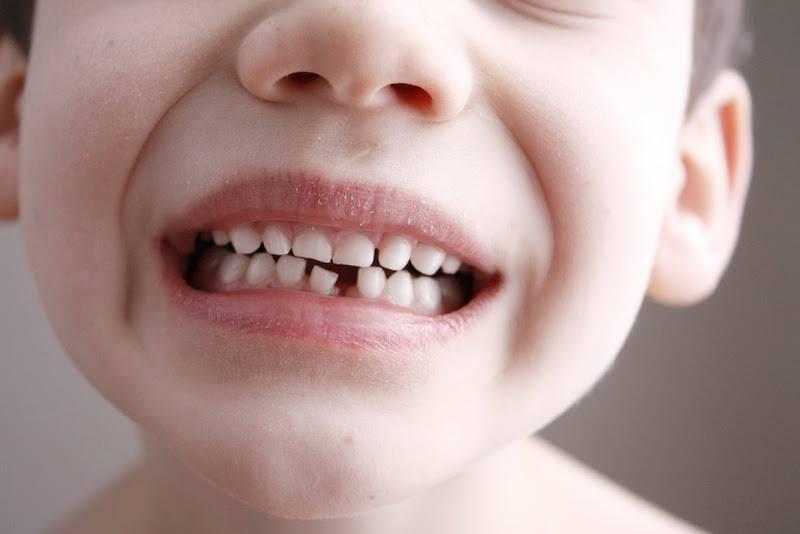 Сколько должно быть зубов в 1 год