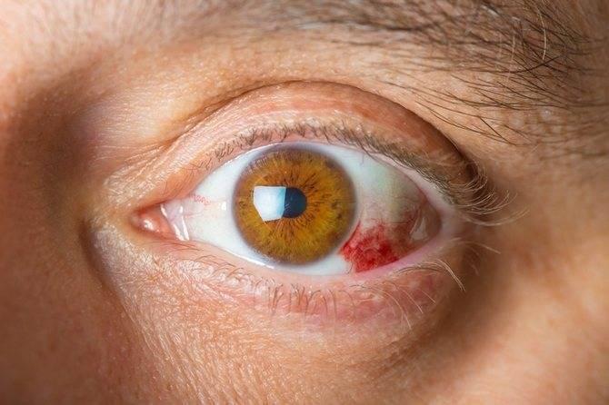 Ангиопатия сетчатки глаза у ребенка: что это такое, болезнь сосудов сетчатки обоих глаз у новорожденных и грудничков