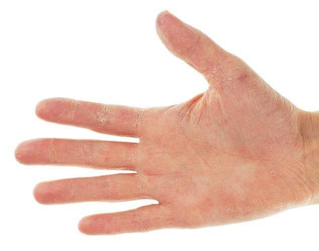 У ребенка шелушатся пальцы на руках и ногах и трескается или облезает кожа