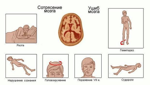 Признаки сотрясения мозга у ребенка - как определить, есть ли сотрясение у ребенка 1-2 лет, 3-6 лет, как распознать в домашних условиях, первые симптомы
