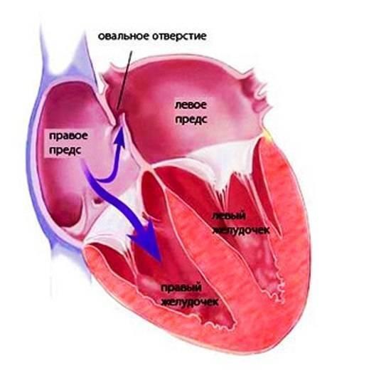 Открыто овальное окно у новорожденного - открытое овальное окно в сердце у ребенка - запись пользователя инна (batinka) в сообществе здоровье новорожденных в категории болезни сердца - babyblog.ru