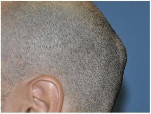 Шишка уплотнение на голове. твердая шишка на затылке. причины образования шишек на шее у грудничка