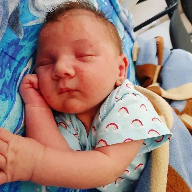 Это цветение или что? - запись пользователя ната (natusik1685) в сообществе здоровье новорожденных в категории высыпания на коже - babyblog.ru
