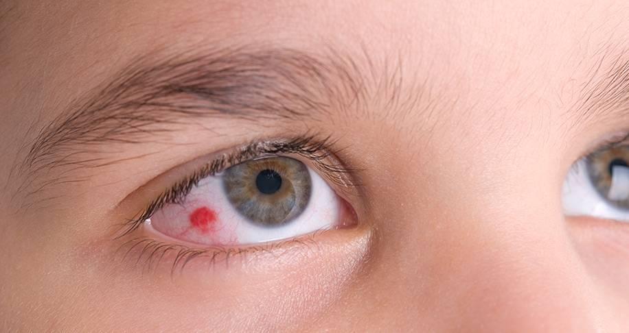 С чем связана ангиопатия сетчатки глаза?