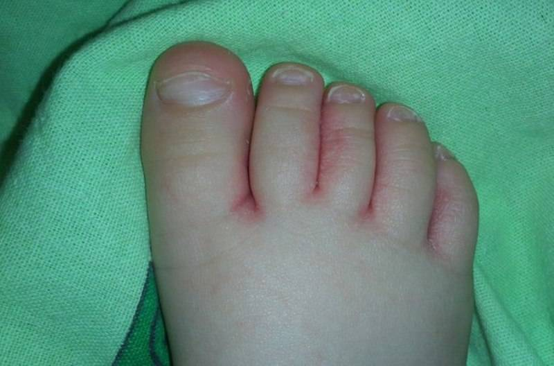 Шелушится кожа на пальцах ног у ребенка