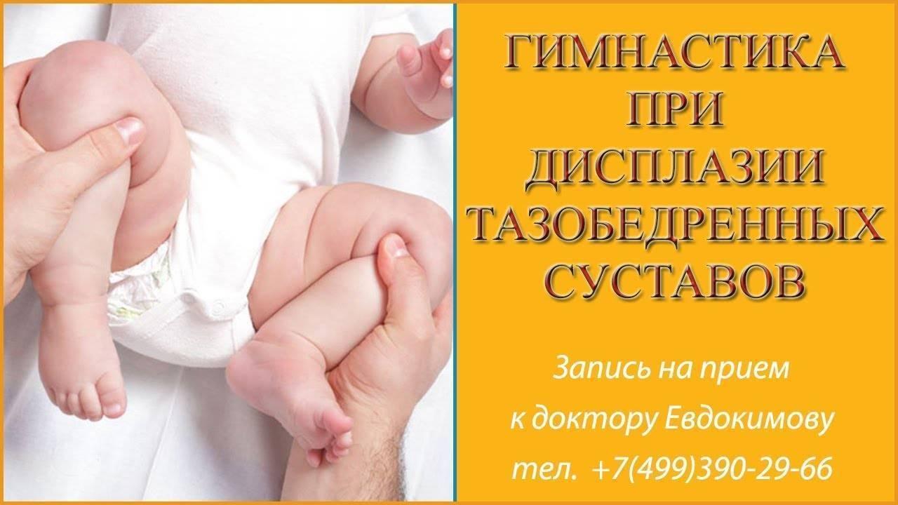 Причины развития, признаки и лечение тазобедренной дисплазии у новорожденных