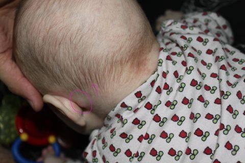Причины появления шишки за ухом у ребёнка