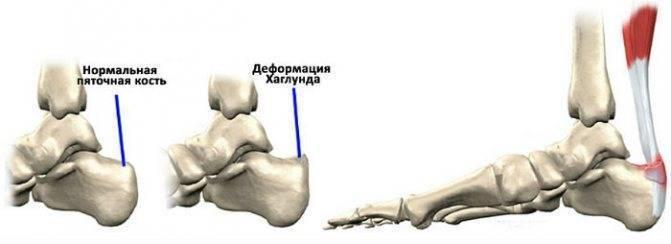 Температура 38 и болят ноги у ребенка