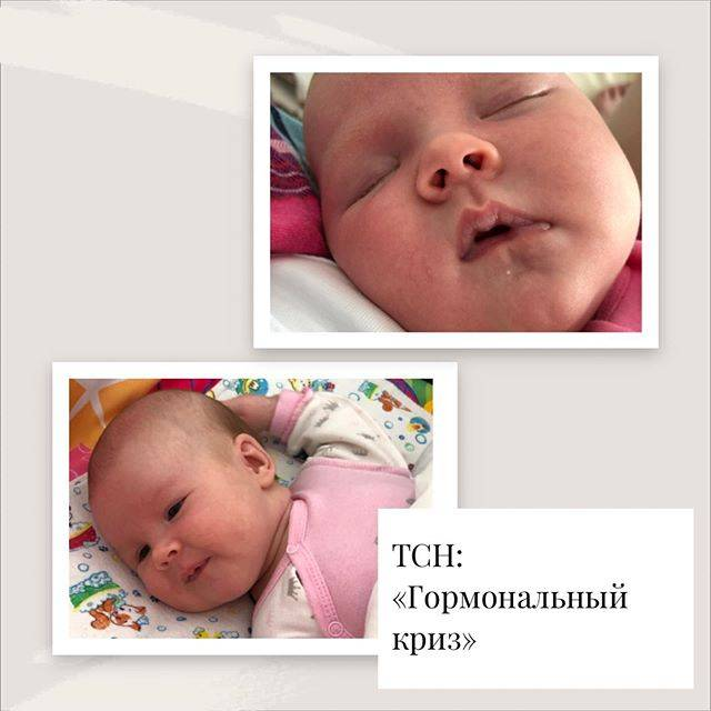 Пограничные состояния новорожденных