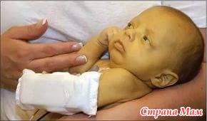 Причины и лечение гемолитической болезни у новорождённых