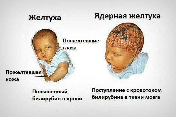 Желтуха новорожденных (для врачей и пациентов) (рмс)