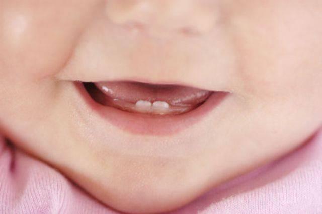Как понять, что у ребёнка режутся зубы и чем облегчить его состояние: полезная информация для родителей