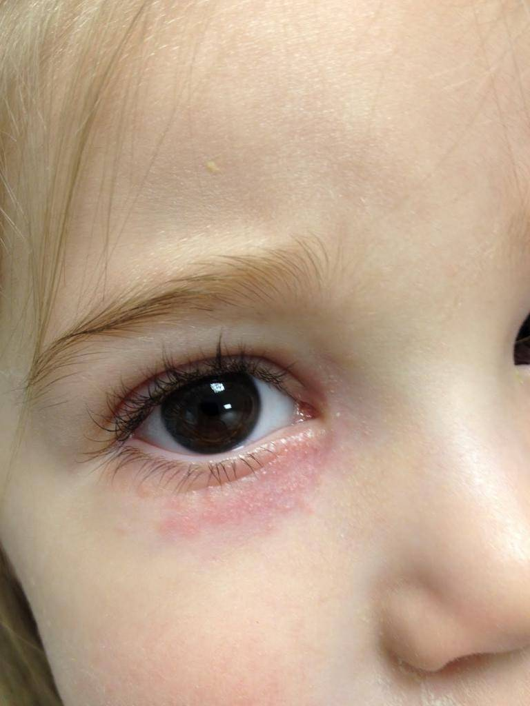 Почему возникает стоматит на теле у детей: фото, основные симптомы и методы лечения