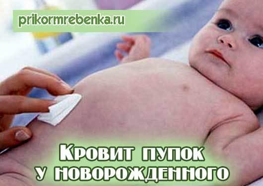 Решаем проблему: что делать, если у новорожденного кровит пупок