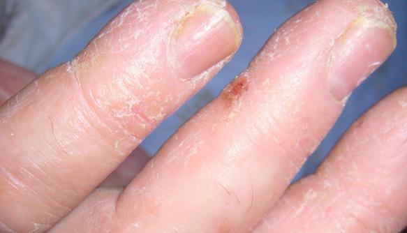 Почему у ребенка облазят пальцы на руках: шелушение кожи на подушечках пальцев