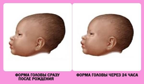 Роднички у грудничка. большой родничок у ребенка. зарастание и размеры родничка