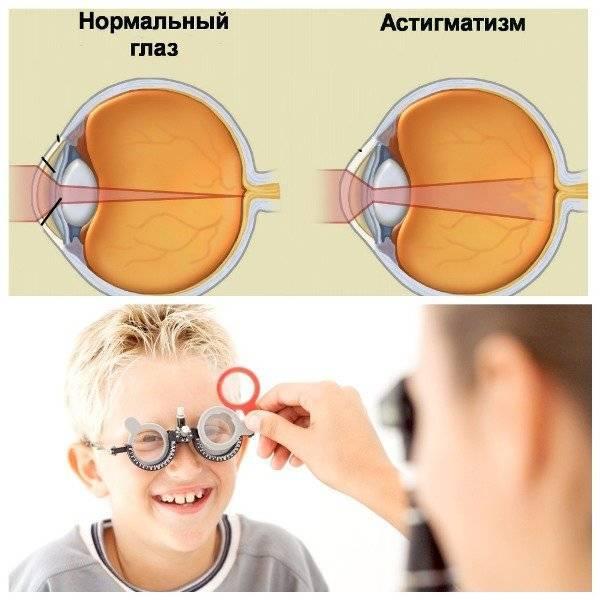 Астигматизм у детей: что это такое, причины и лечение болезни