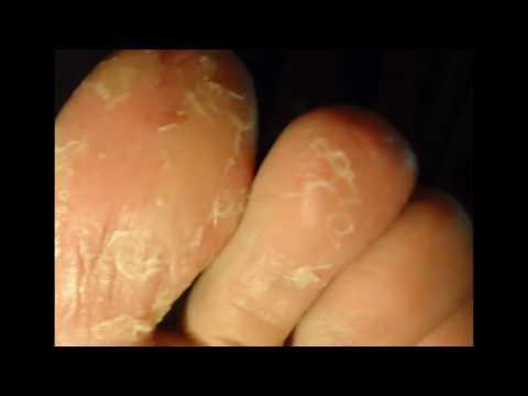 Лечение трещин на сгибах и подушечках пальцев рук