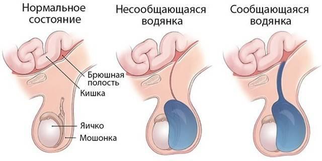 Водянка яичка (гидроцеле) у мужчины, у мальчика, у новорожденных детей – описание и причины болезни, симптомы и диагностика, лечение (операция, пункция), отёк после операции