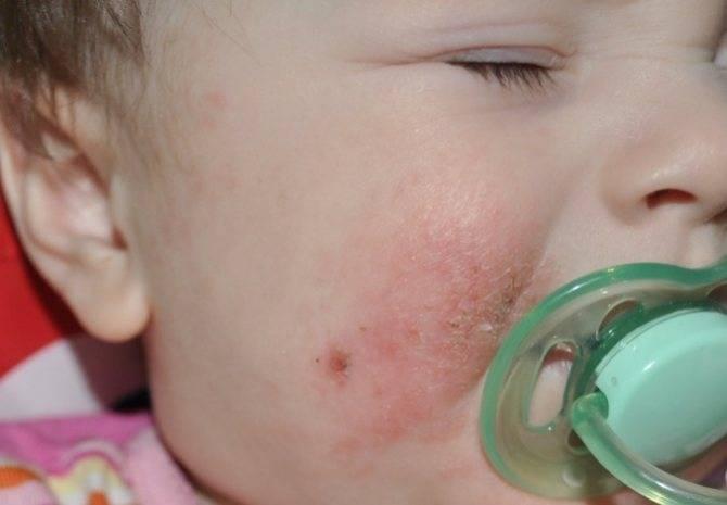 Водянистые пузырьки на коже