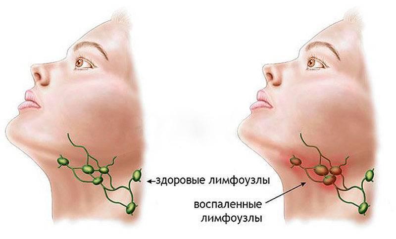Доктор комаровский об увеличенных лимфоузлах на шее у ребенка