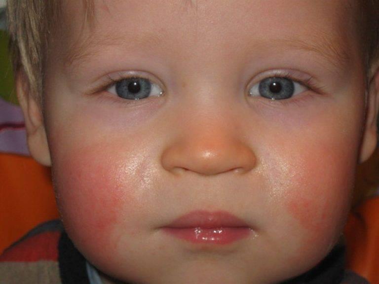 У ваших детей краснели щеки не на пищевой аллерген? - краснеют щеки у ребенка к вечеру - запись пользователя вика вика (id2421275) в сообществе здоровье новорожденных в категории аллергия - babyblog.ru