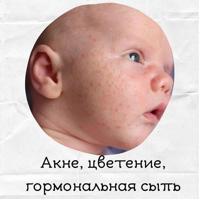Жировики у новорожденных: причины и лечение