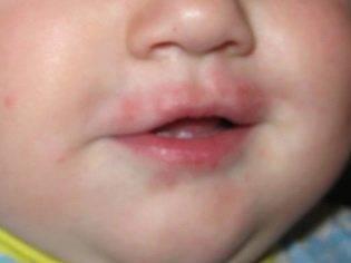 В точку! корь, ветрянка, краснуха и другие инфекционные заболевания у детей. вирусная, аллергическая сыпь у ребенка