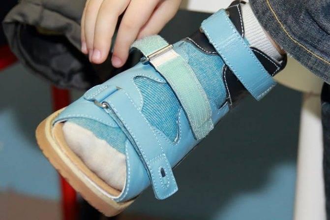 Причины, по которым ребенок ходит на носочках