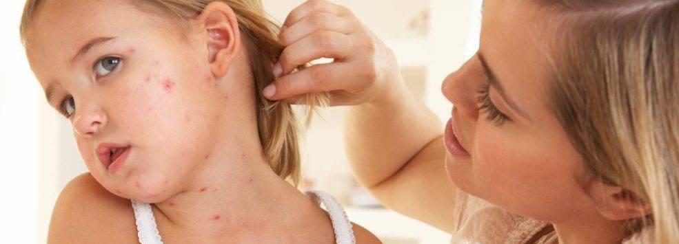 У ребенка сыпь на подбородке: причины высыпания красных точек