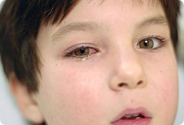 Гноятся глазки у новорожденного: причины и лечение