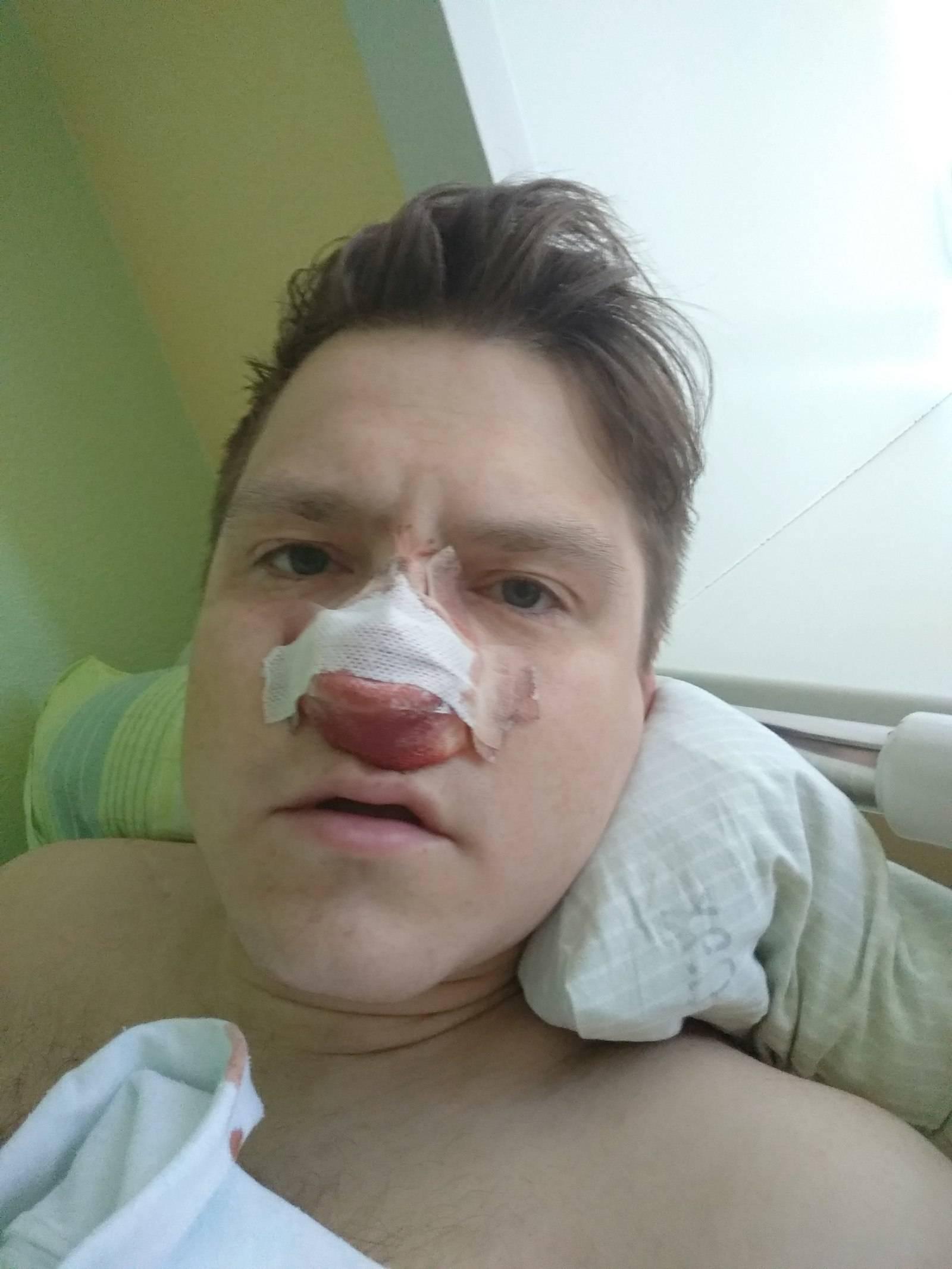 Полипы в носу у ребенка — что это такое, симптомы наростов