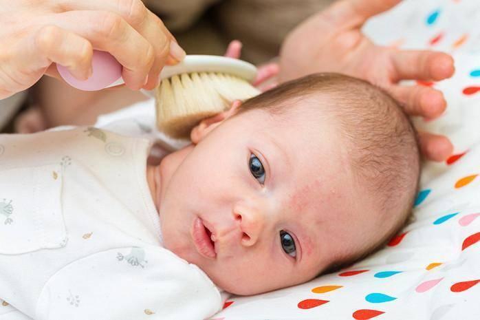 Вытерся затылочек - у грудничка вытерся затылок - запись пользователя галина (mamagashi) в сообществе здоровье новорожденных в категории разное - babyblog.ru
