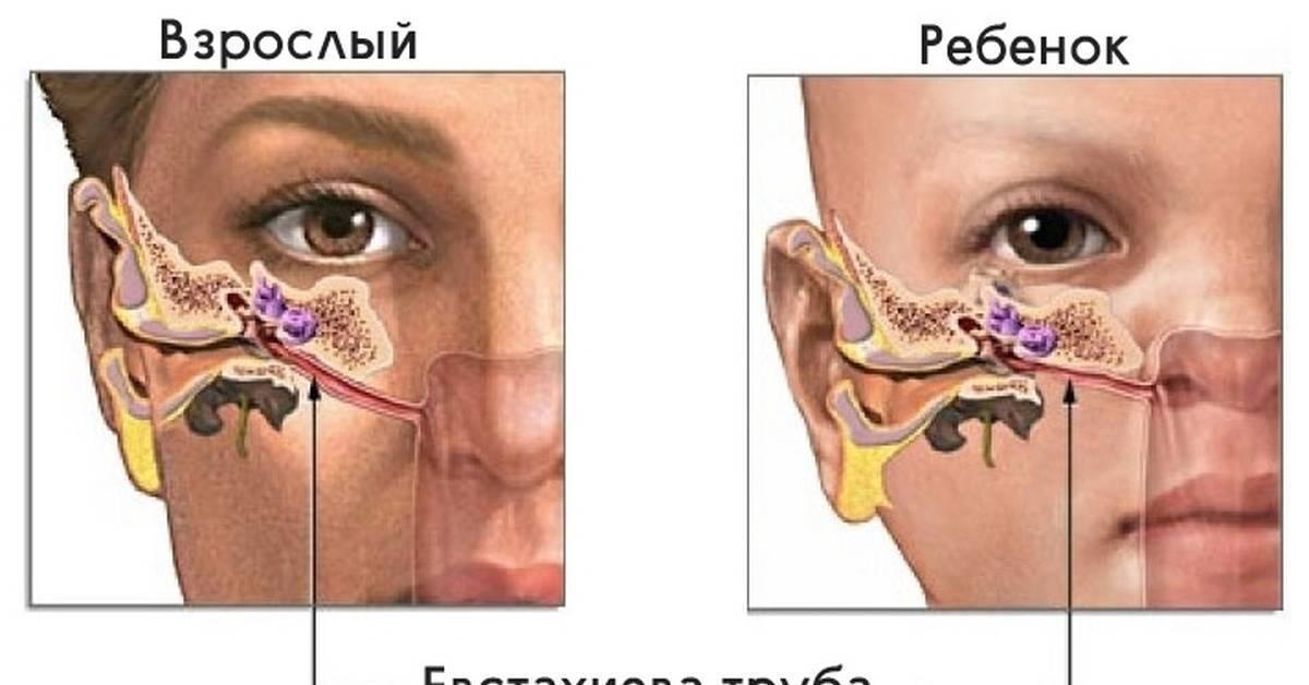 Что делать, если грудничку попала вода в уши
