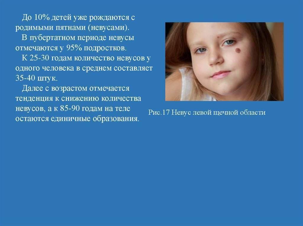 Родинки у детей: что с ними делать, чтобы свести вероятность развития рака к минимуму