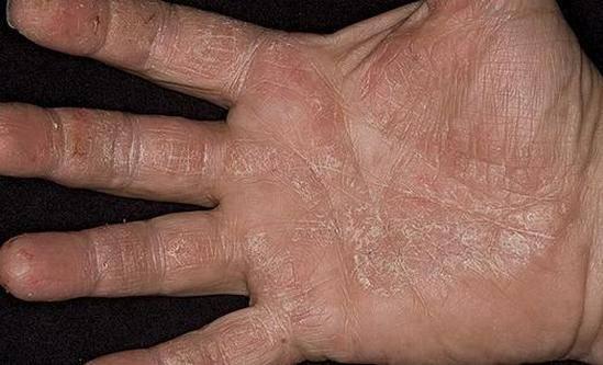 Шелушится кожа у ребенка – основные причины, места поражения и лечение шелушений