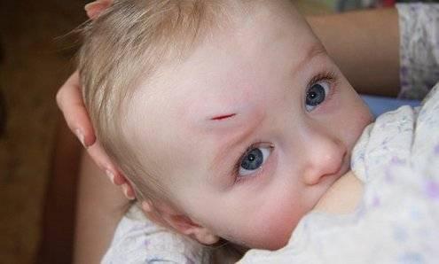 Ребенок ударился головой - на что обратить внимание, что делать