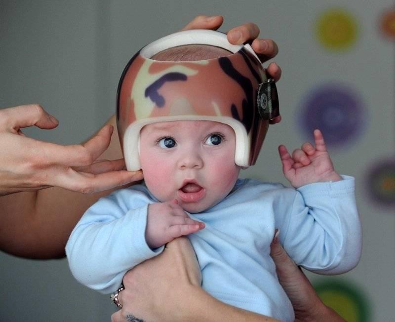 Kak-vyrovnyat-sheyu - запись пользователя инна (anjee555) в сообществе здоровье новорожденных в категории кривошея - babyblog.ru