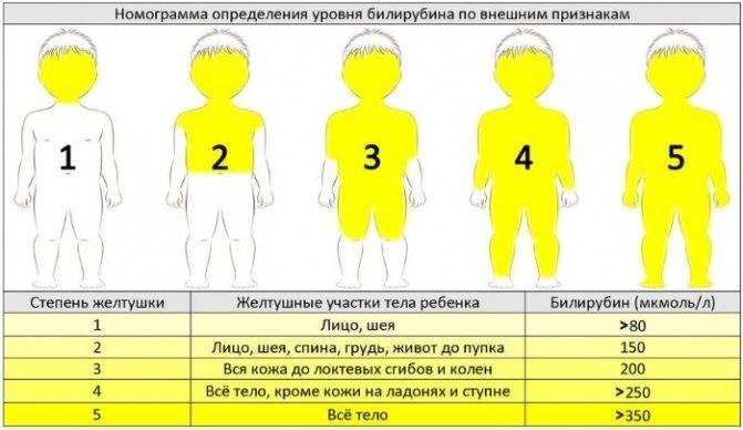 Непроходимость кишечника у новорожденных симптомы