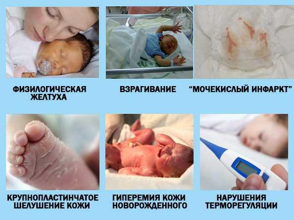 Пограничные состояния у новорожденных