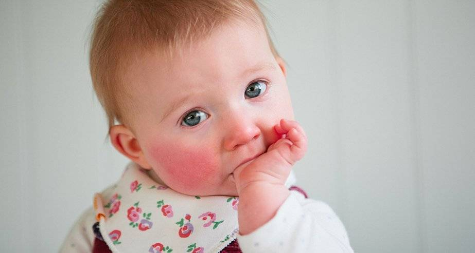 Аллергия у ребенка — что делать