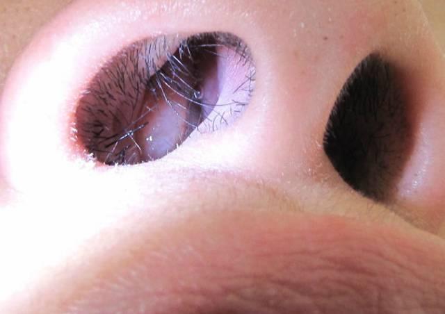 Полипы в носу у детей: симптомы и лечение