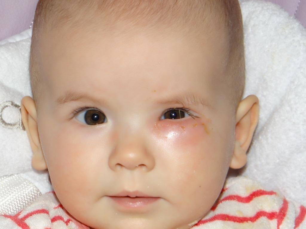 Зондирование слезного канала- кто делал расскажите что и как?? - запись пользователя в мире ощущений (nastyaa) в сообществе здоровье новорожденных в категории болезни глаз - babyblog.ru